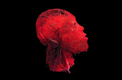 Look at the amazing web of blood vessels inside a human head!